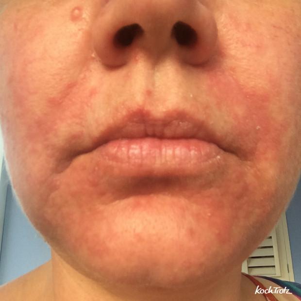 Periorale Dermatitis - Mundrose
